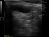 Dramiński 4vet slim portable escaner de ultrasonido para utero de perro