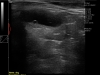 Dramiński 4vet slim portable ultrasound scanner dog uterus