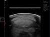 draminski blue échographie du tendon du cheval