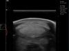 Dramiński Blue horse tendon ultrasound-examination