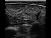 Patologie układu rozrodczego u bydła usg