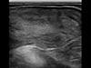 Endometritis u bydła