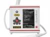 Un escáner de ultrasonido de tamaño pequeño para médicos que trabajan en el campo.