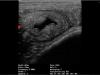 iscan-mini-uterus-avec-du-liquide