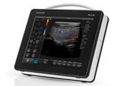 mobilny przenośny ultrasonograf blue do badania pacjentów w stanach nagłych